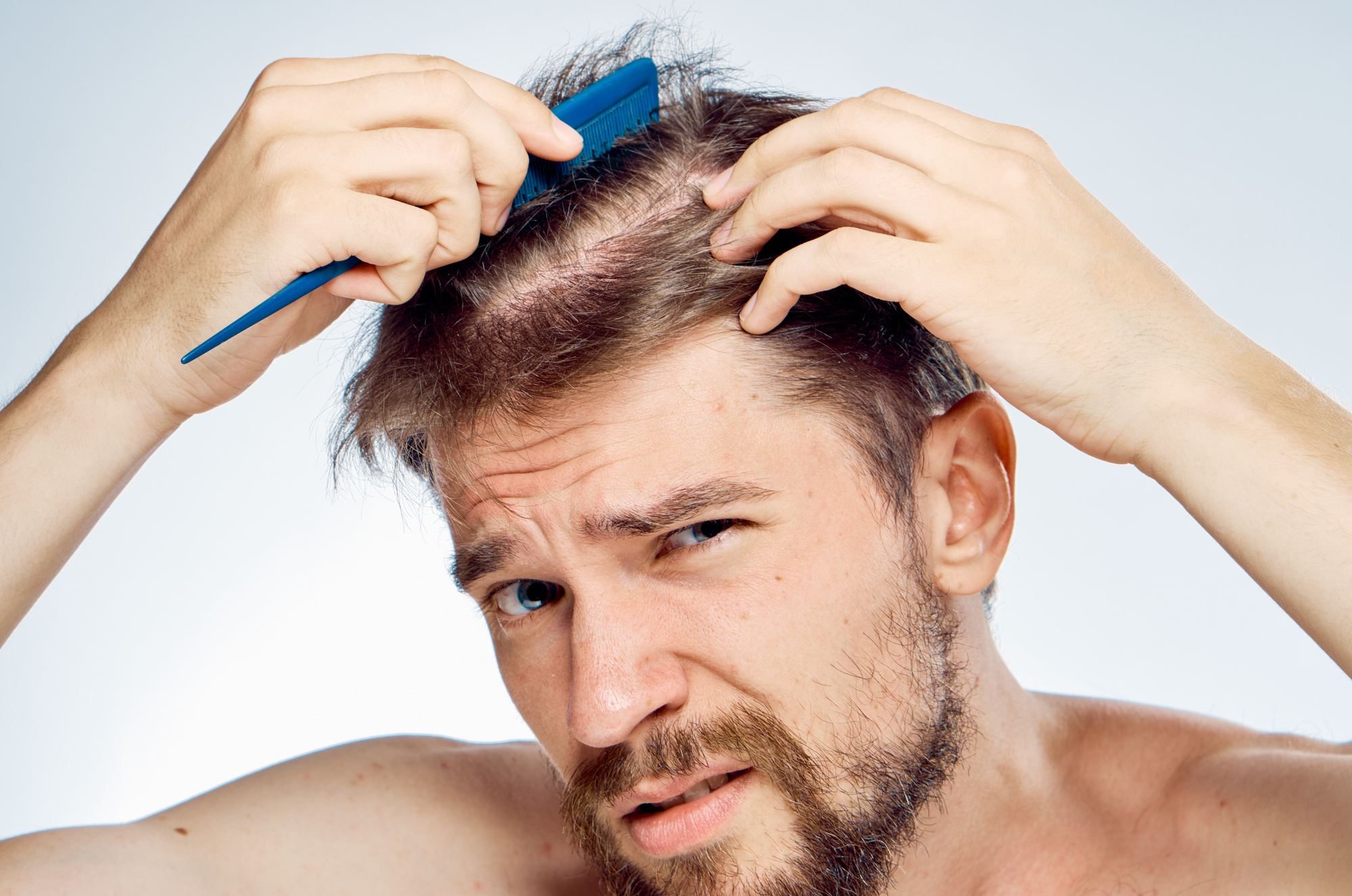 5 Early Signs of Balding You Can't Ignore