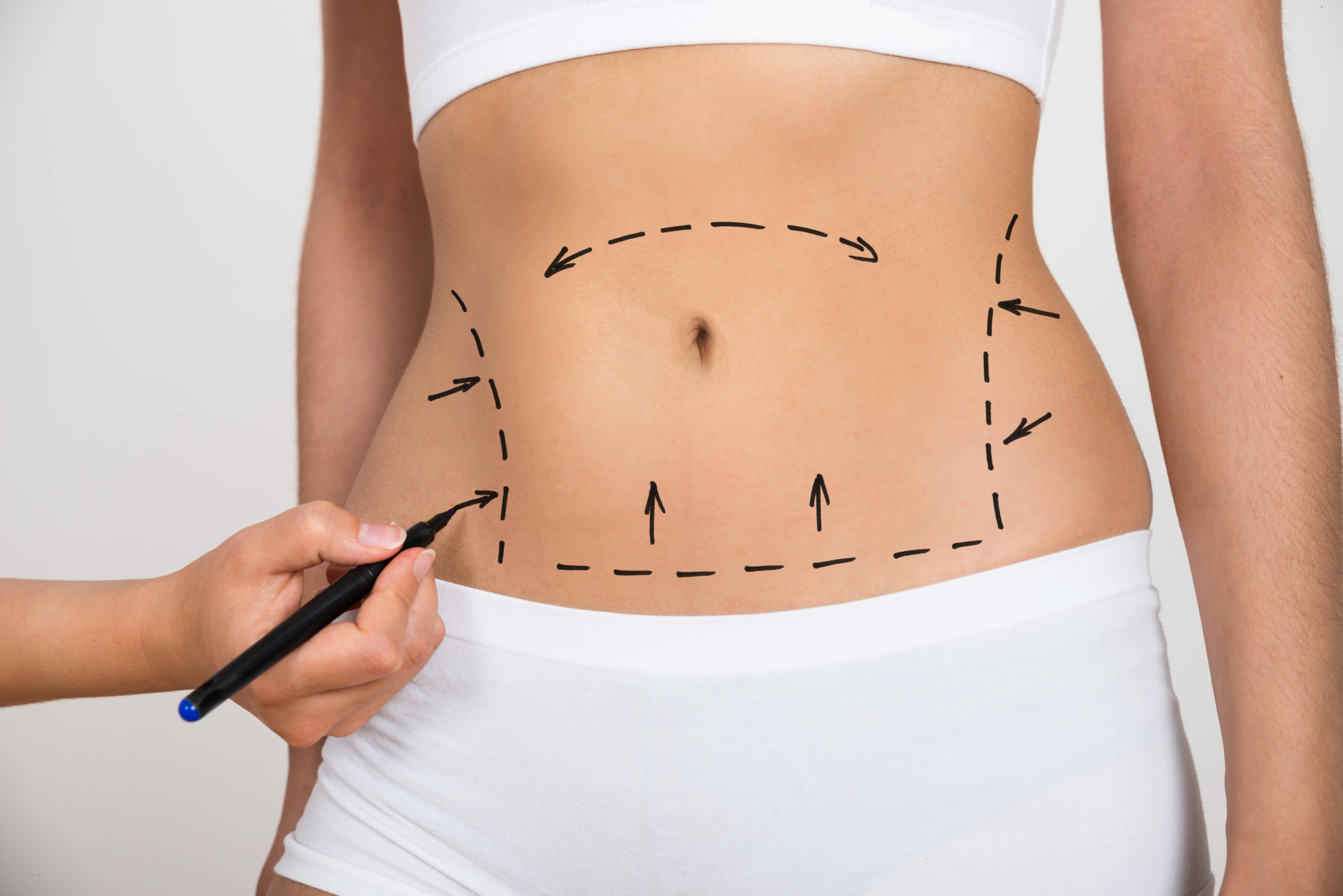 Cosmetic Surgery: What to Ask Your Surgeon Before Getting Implants