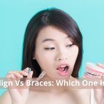 Invisalign Versus Braces: Which One Is Best?