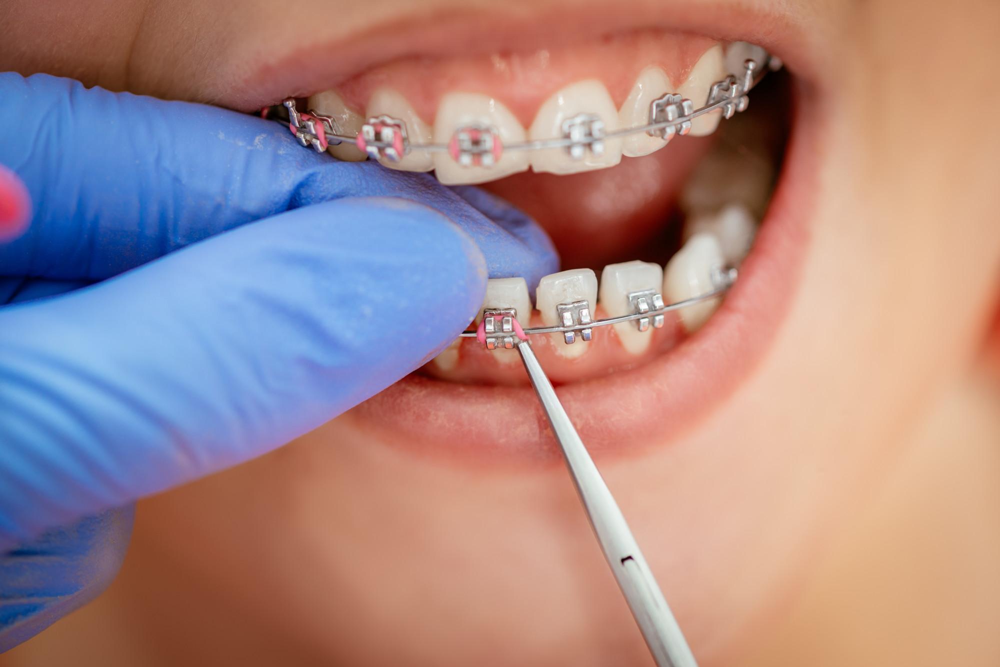 4 Different Types of Orthodontics